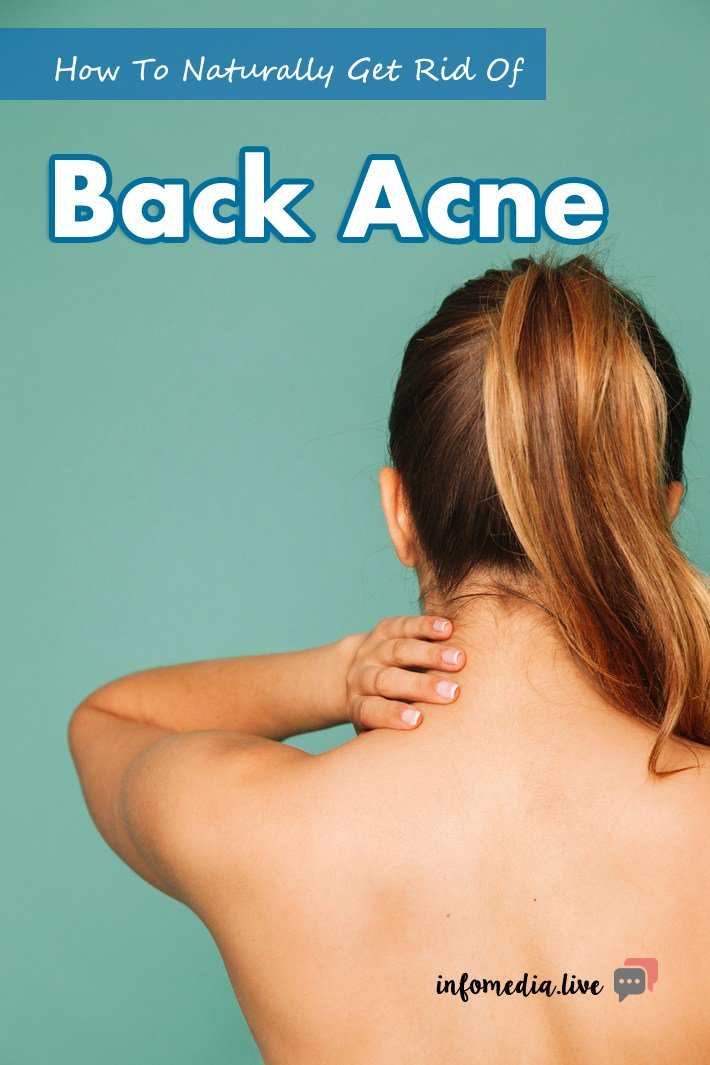 How To Naturally Get Rid Of Back Acne