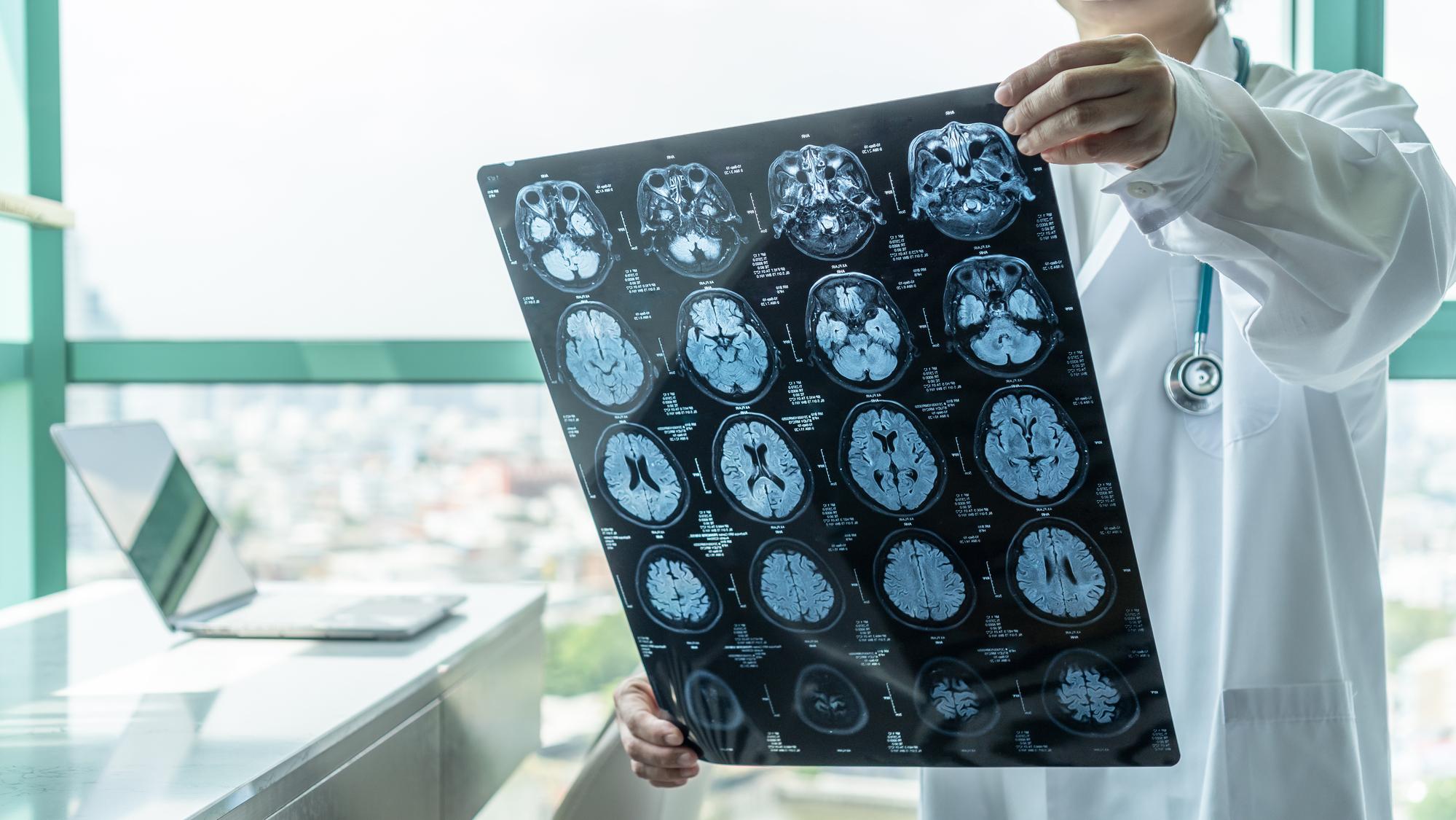 World Head Injury Awareness Day
