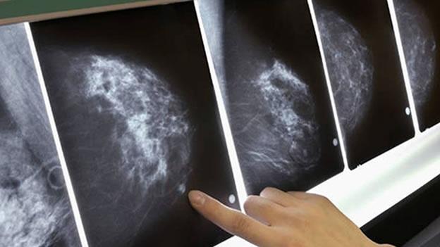 Alarmantes los casos de cáncer de mama en el Estado.