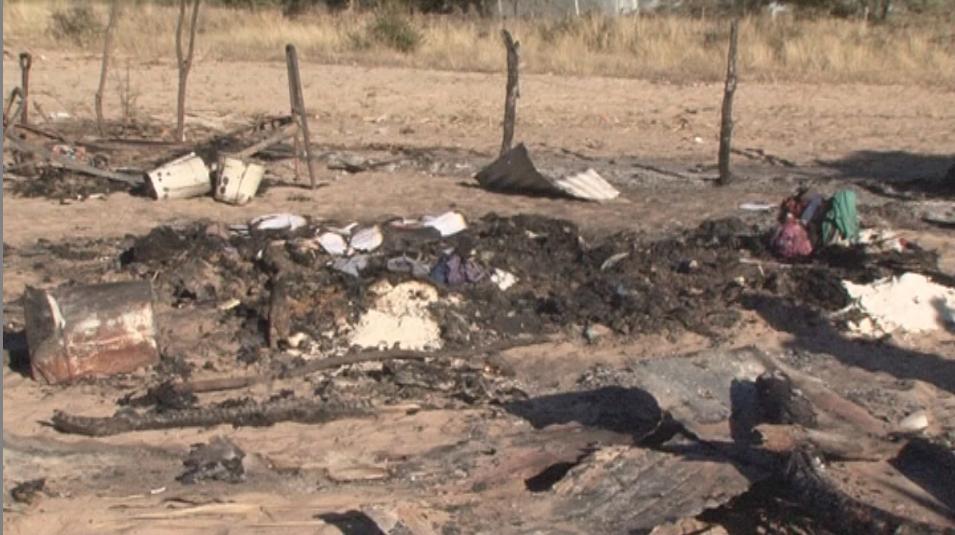 Children burn shack fires newborn fighting hospital separate shack fire incidents