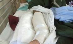 Intervienen quirúrgicamente a policía; resultó herido en emboscada
