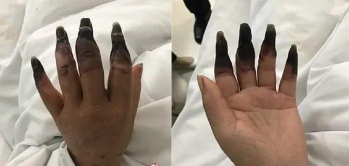 Për shkak të neglizhencës, gruaja rrezikoi gishtat e dorës