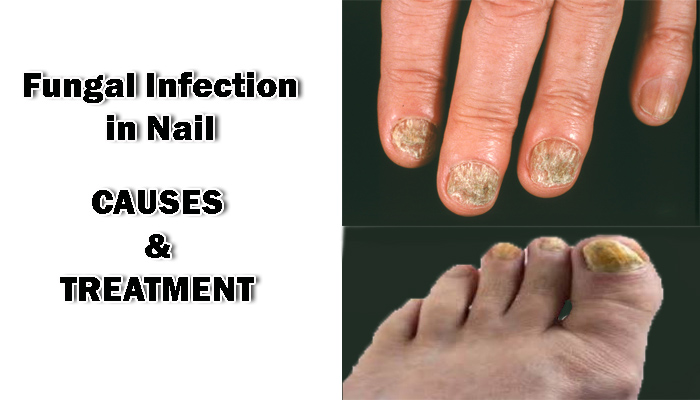 Fungal infection in nail