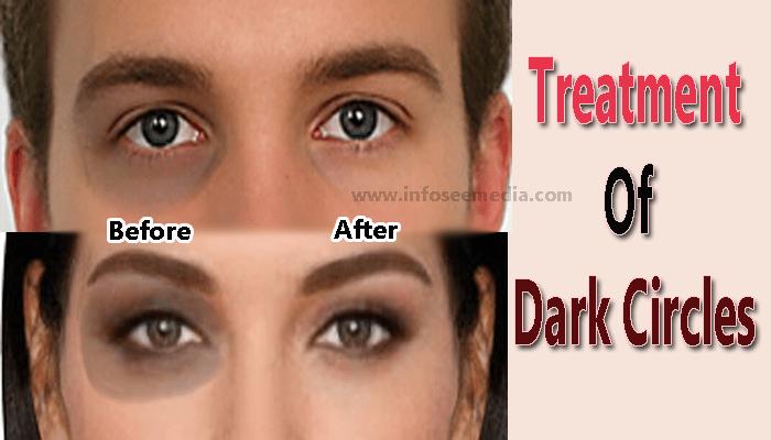 dark circles infoseemedia