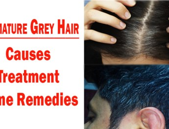 Premature grey hair - causes, treatment and home remedies