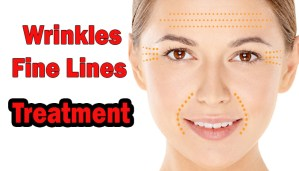 wrinkles and finelines treatment