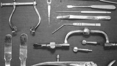 Photo of The Phenomenon of Retained Surgical Tools