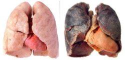 Как очистить легкие после курения. Дома и без лекарств