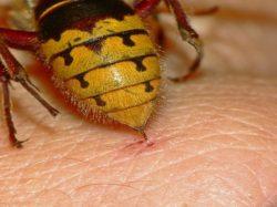 Укусила пчела или оса: что делать? Как оказать первую помощь