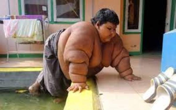 Le plus gros enfant du monde pèse 192 kg
