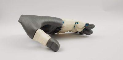 Prótesis-impresa-en-3D