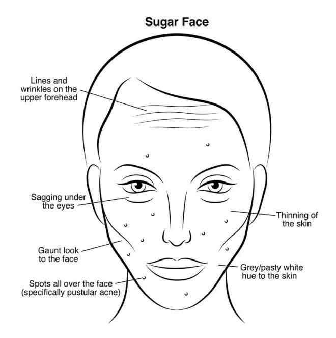 gallery-1446587326-sugar-face