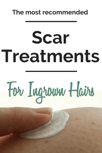 Sometimes Ingrown hairs get out of control and you get a really infected one thatjust has to go so how do you remove an ingrown hair?