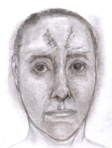 Charcoal and pencil drawing of person with scarred face