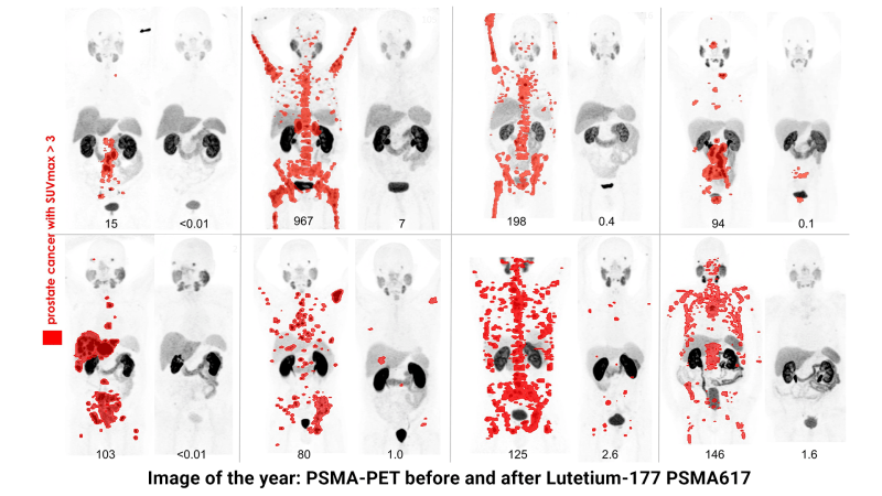 Image of the year: PSMA-PET before and after Lutetium-177  PSMA617