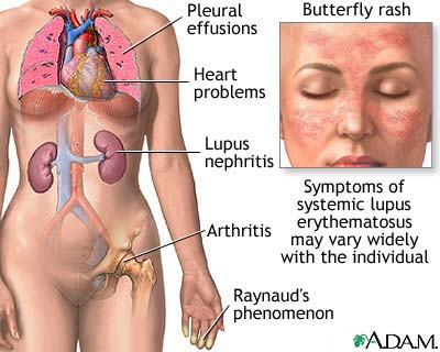 Lupus Eritematosus Disseminata
