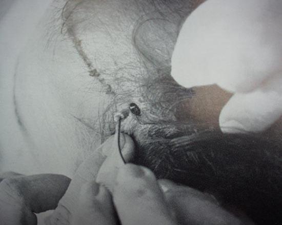 Técnica del Punch: pelo de muñeca | Micro transplante capilar
