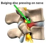 Vertebrae Bulging Disc