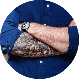 About Our Tattoo Removal Services