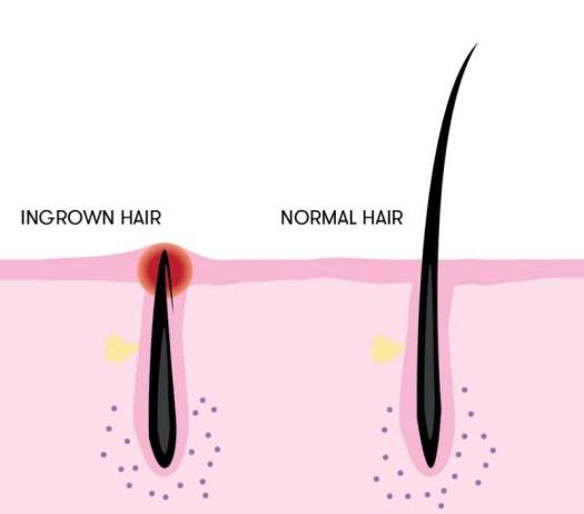 Ingrown-Hair