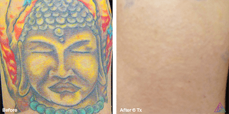 Colour laser tattoo removal before and after Ink Doubt Denver