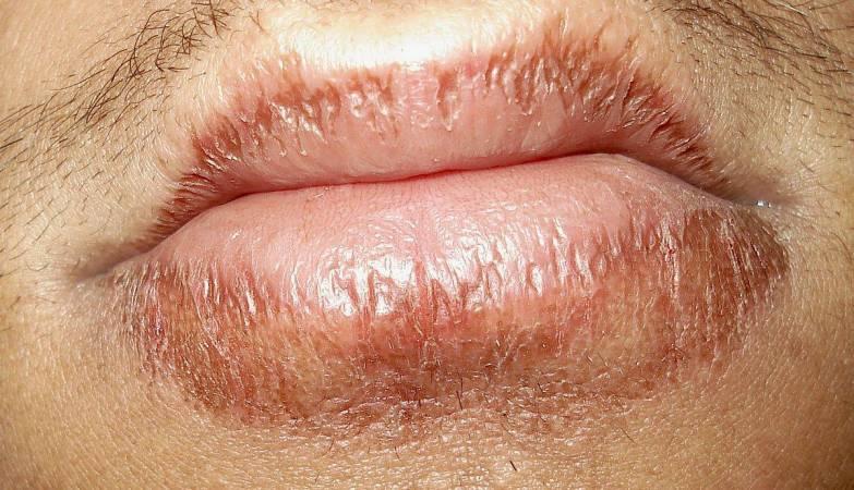 Resultado de imagem para labios rachados