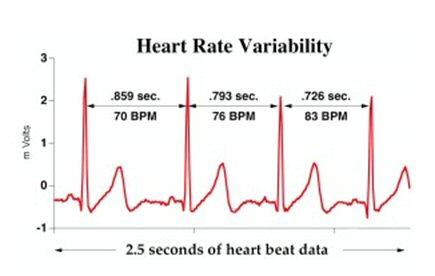 HRV EKG