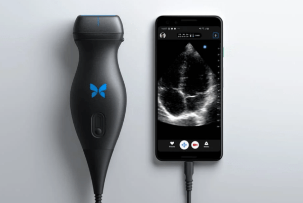 Portable ultrasound system – 'BUTTERFLY IQ'
