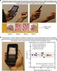 'Anemocheck'- a smartphone application for the non-invasive detection of anemia
