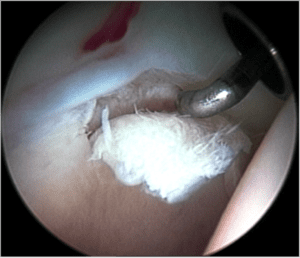 Figure_8._Cartilage_delamination._A_small_area_of_acetabular_cartilage_has_lifted_from_the_underlying_bone,_being_demonstrated_by_use_of_the_arthroscopic_probe.