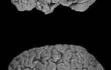 Rush Scientists Identify Buphenyl as a Possible Drug for Alzheimer's disease