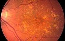 Cholesterol buildup links atherosclerosis and macular degeneration