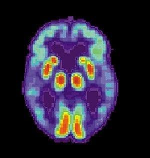 300px-PET_Alzheimer