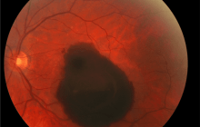 UNC research points to promising treatment for macular degeneration