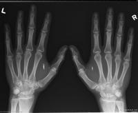 20131220__implant2~1_200