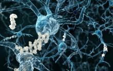 Alzheimer's breakthrough uses ultrasound technology