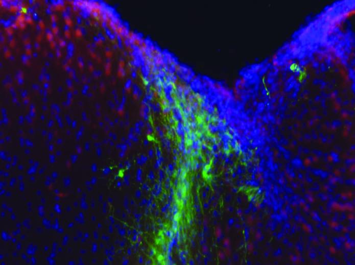 In another part of the study, cells were injected into damaged parts of the brain (pictured), enhancing motor coordination within weeks.