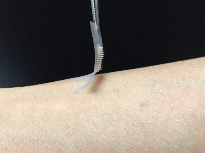 The smart insulin patch could be placed anywhere on the body to detect increases in blood sugar and then secrete doses of insulin when needed. (Courtesy of Zhen Gu, PhD)
