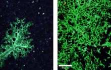 Stem Cells Might Heal Damaged Lungs