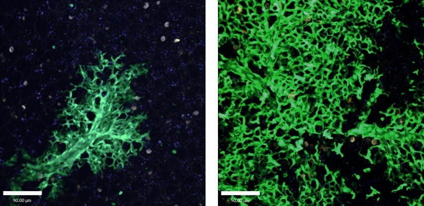New lung cells are continuously created to replace the damaged ones: Lung tissue six weeks after stem cell transplantation (left) and 16 weeks after transplantation (right). Cells that originated in the transplanted stem cells are green, as opposed to the uncolored host lung cells. Photon-2 microscope image