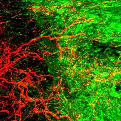 CST axons entering into the graft (Green, graft; Red, CST axon) Copyright : Ken KADOYA