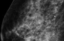 Artificial intelligence expedites breast cancer risk prediction by 30 times at 99 percent accuracy