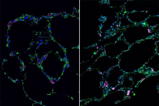 UCLA Broad Stem Cell Research Center 3-D bioengineered lung-like tissue (left) resembles adult human lung (right).