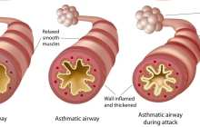 An off-switch for Asthma attacks