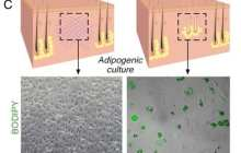 Discovery allows wounds heal as regenerated skin rather than scar tissue