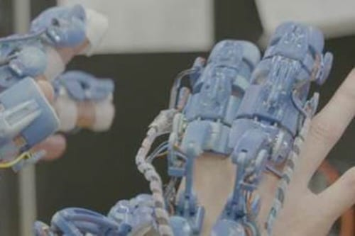 A wearable robotic system for minimally invasive surgery