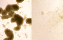 Zika virus an effective treatment for glioblastoma?
