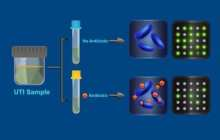 Antibiotic-resistant bacteria identified in 30 minutes instead of 3 days