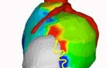 Can noninvasive radiation treatment help a deadly heart rhythm problem?