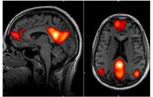 Predicting whether OCD will improve with treatment via a brain scan and artificial intelligence